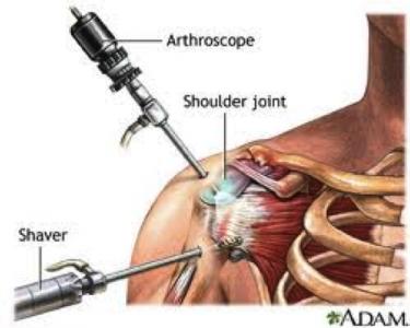 اقدامات درمانی آرتروز